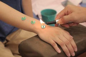 手首に鍼灸治療